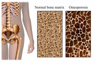 Osteoporosis - Causes, symptoms, Diagnosis and Treatment.