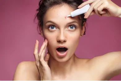acne-free
