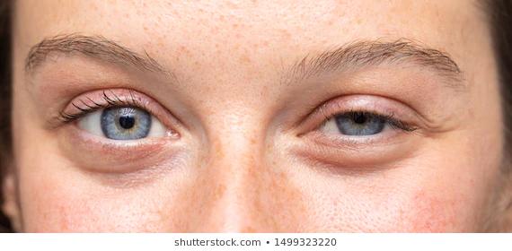 Swollen eyes 1